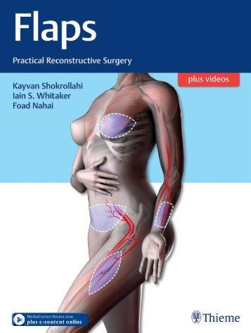 Flaps Practical Reconstructive Surgery