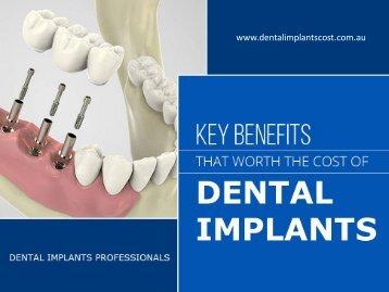 Dental Implant Cost in Sydney – Key Factors!