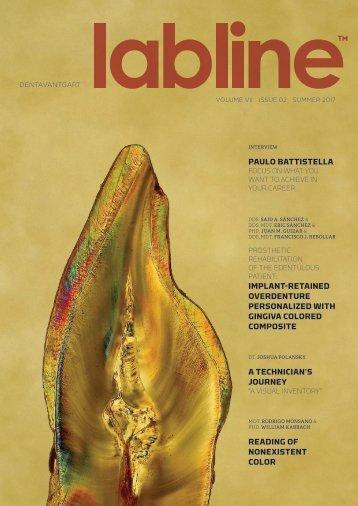 Labline-Magazin: Ein Artikel von MDT Alek Aronin