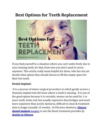 Best Options for Teeth Replacement