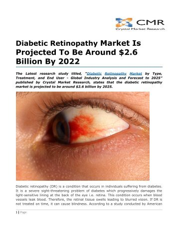 Diabetic Retinopathy Market Is Projected To Be Around $2.6 Billion By 2022