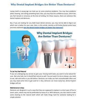 Why Dental Implant Bridges are Better than Dentures?