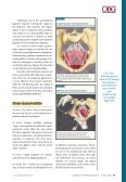 Innovations in mesh kit technology for vaginal wall prolapse - OBG ... - Page 3