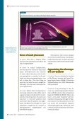 Innovations in mesh kit technology for vaginal wall prolapse - OBG ... - Page 4