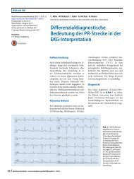 09 Differenzialdiagnostische Bedeutung der PR-Strecke in der EKG-Interpretation