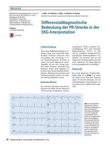 09 Differenzialdiagnostische Bedeutung der PR-Strecke in der EKG-Interpretation