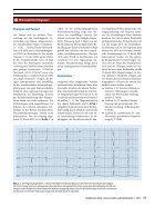 09 Differenzialdiagnostische Bedeutung der PR-Strecke in der EKG-Interpretation - Seite 2