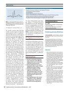 09 Differenzialdiagnostische Bedeutung der PR-Strecke in der EKG-Interpretation - Seite 3