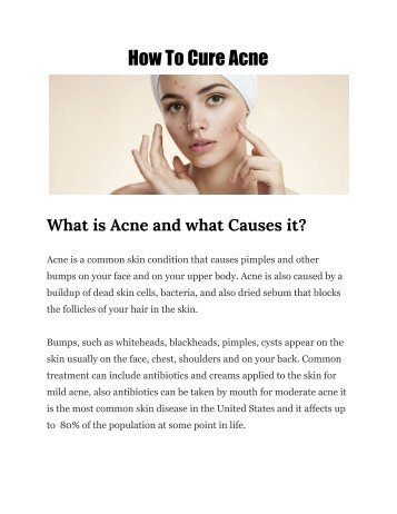 How_To_Cure_Acne_1
