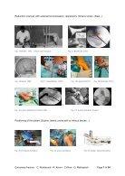 Minimal invasive surgery of intra-articular calcaneus fractures final 31jan2018 c_rodemund  - Page 7