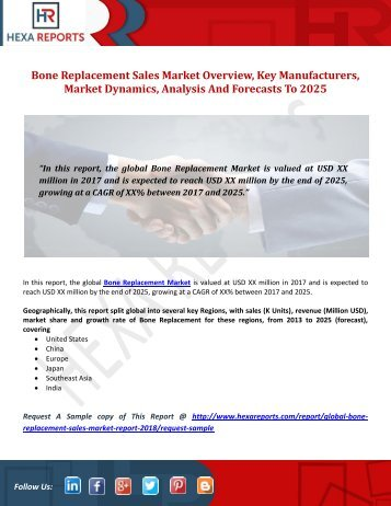 Bone Replacement Sales Market Overview, Key Manufacturers, Market Dynamics, Analysis And Forecasts To 2025