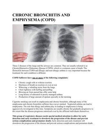 CHRONIC BRONCHITIS AND EMPHYSEMA (COPD)