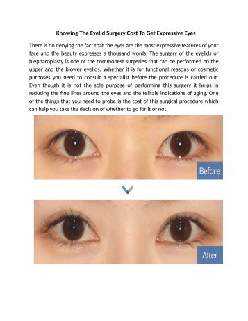 Knowing The Eyelid Surgery Cost To Get Expressive Eyes