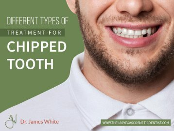 Treatment to Fix a Chipped Tooth| Cosmetic Dentist in Las Vegas