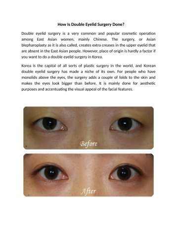 How Is Double Eyelid Surgery Done?