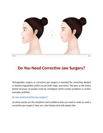 Do You Need Corrective Jaw Surgery?