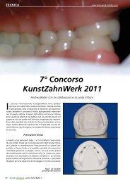 7° Concorso KunstZahnWerk 2011 - Candulor