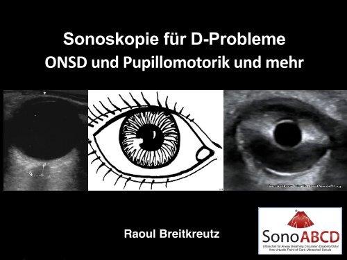 D-Probleme: Point-of-Care Ultraschall für ONSD und Pupillomotorik