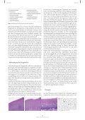 Die Leukoplakie der Mundschleimhaut: Diagnostik ... - Akopom - Seite 3