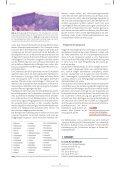 Die Leukoplakie der Mundschleimhaut: Diagnostik ... - Akopom - Seite 4