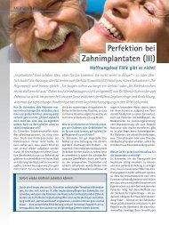 Perfektion bei Zahnimplantaten (III) - Zahnkultur