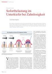 Sofortbelastung im Unterkiefer bei Zahnlosigkeit - implantologie-whv ...