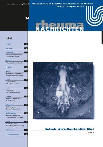 Sakrale Wurzeltaschendivertikel - Rheuma Schweiz