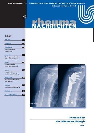 RheumaNachrichten Nr.42_24S - Rheuma Schweiz