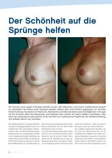 Schönheitsoperationen Brüste - gesund-in-ooe.at