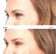 Cosmetic Dermatology in Sterling Heights Michigan
