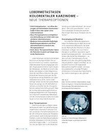 aktuelle-medizin-lebermetastasen