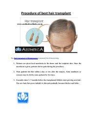 Procedure of best hair transplant