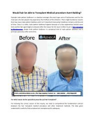 Would hair be able to Transplant Medical procedure Avert Balding