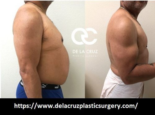 Best liposuction Houston