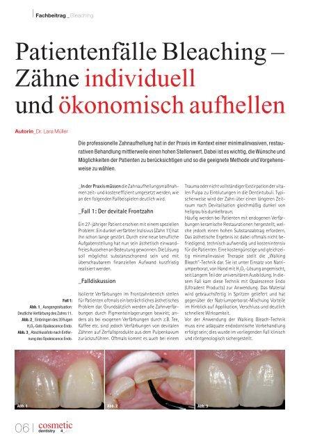 Bilder zahnfarbe b1 Weiße Zähne