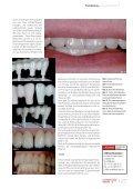 IFachbeitrag - Art-Dent - Seite 3
