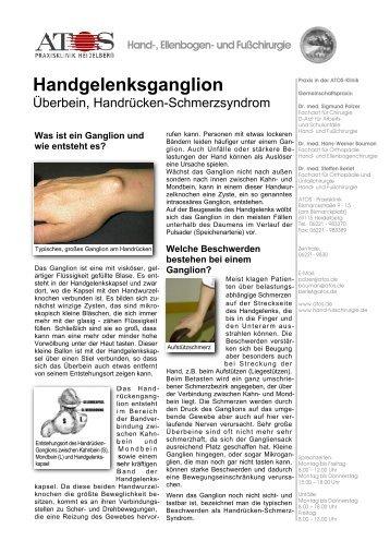 Handgelenksganglion - und Fußchirurgie