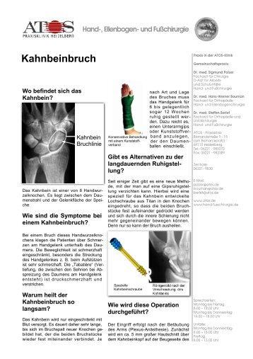 Kahnbeinbruch - und Fußchirurgie