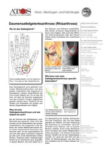 Daumensattelgelenksarthrose (Rhizarthrose) - und Fußchirurgie