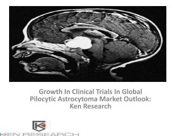 Global Pilocytic Astrocytoma Market Research Report, Analysis, Opportunities, Forecast, Size, Segmentation, Competitive Analysis : Ken Research