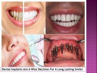 Dental Implants Are A Wise Decision For A Long Lasting Smile!