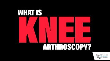 What is Knee Arthroscopy?