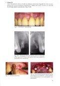 Considerazioni Estetiche e Funzionali in Implantologia Osteointegrata - Page 7