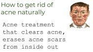 How to clear Acne And erase acne scars naturally!