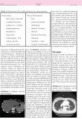 Prinzipien der anti- mykotischen Therapie - Antibiotika Monitor - Page 4