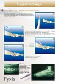 Metatarsal osteotomy - Int2Med - Page 4