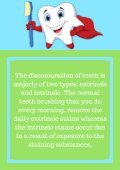 What Creates Discolouration of Your Teeth And How To Treat It? - Page 2
