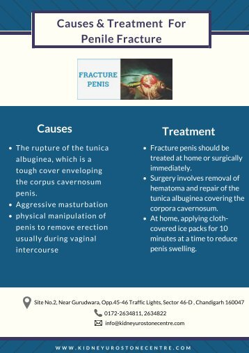 Causes & Treatment  of Penile Fracture