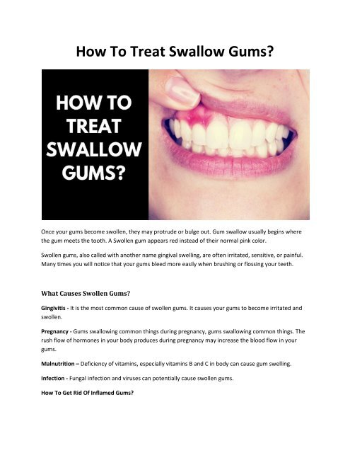 How To Treat Swallow Gums