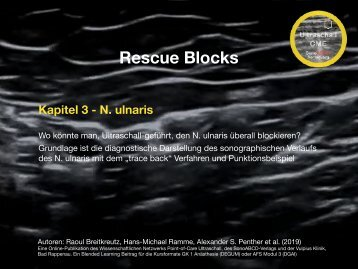 Rescue Blocks_Kapitel 3_Ulnaris trace back und Punktionsbeispiel
